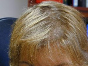 Laser Hair Loss Treatment Estetika Clinic