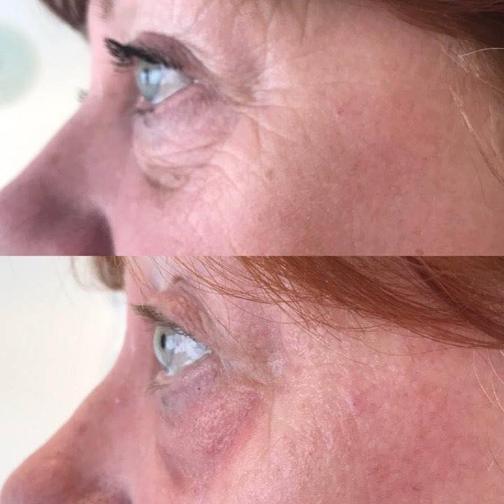 5 Essential Tips about Microneedling That You Should Know Estetika Clinic