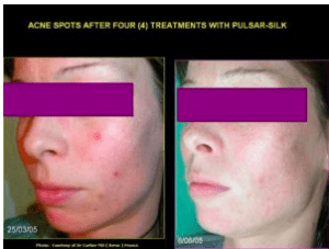 Acne Treatment Estetika Clinic