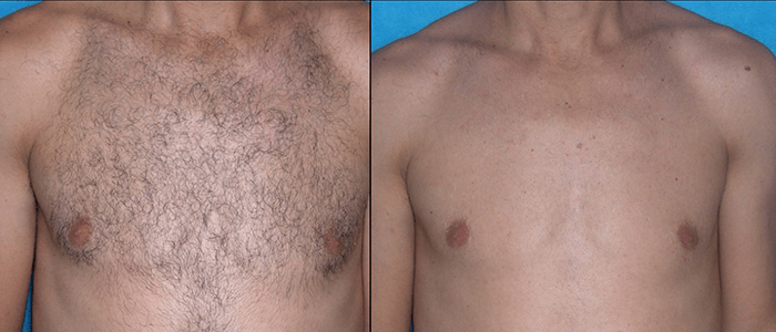 Laser Hair Removal Estetika Clinic