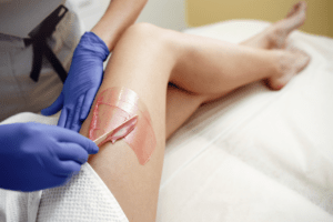 hair removing waxing Estetika Clinic