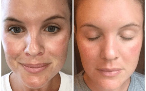 microneedling before and after Estetika Clinic