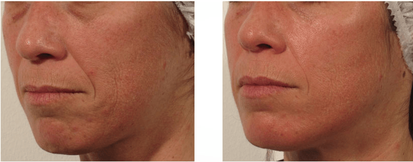 The Pyramid Facelift Estetika Clinic